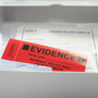 Rape kit testing backlogged in Idaho state labs